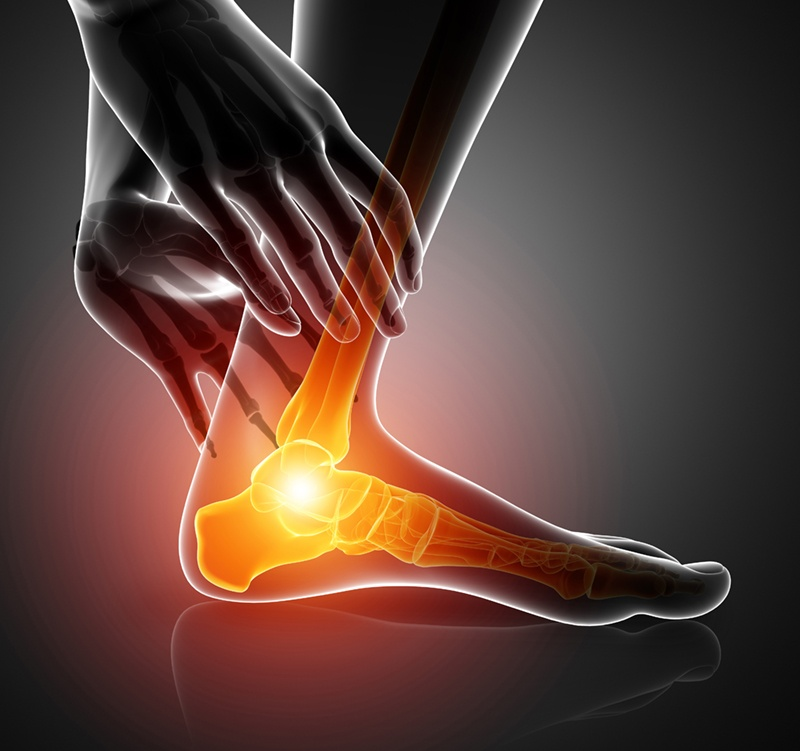 Joint Inflammation in Feet